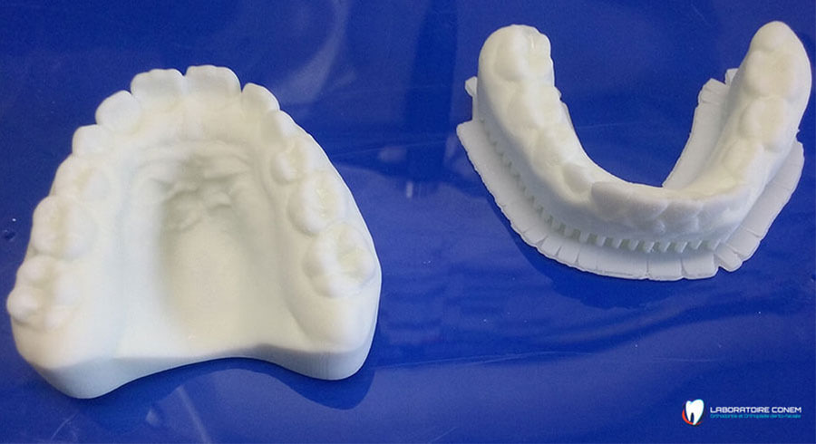 MOULAGES ORTHODONTIQUES
